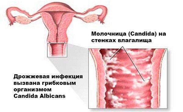 Молочница – Кандидоз на половом члене мужчины